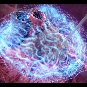 The NanoKnife System