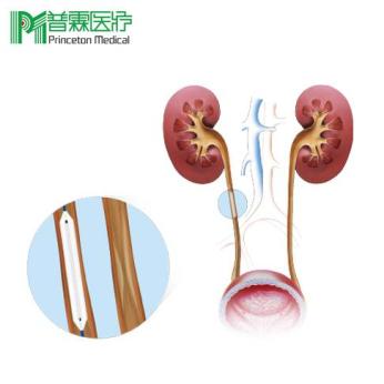 Ureteral Balloon Catheter