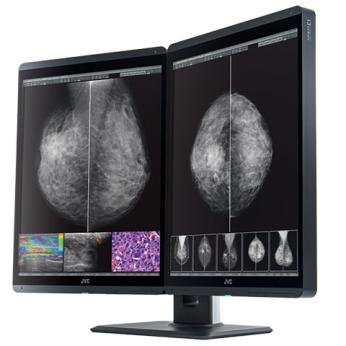 Diagnostic monitor