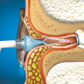 BIONIX OtoClear® Ear Irrigation Tips & Systems